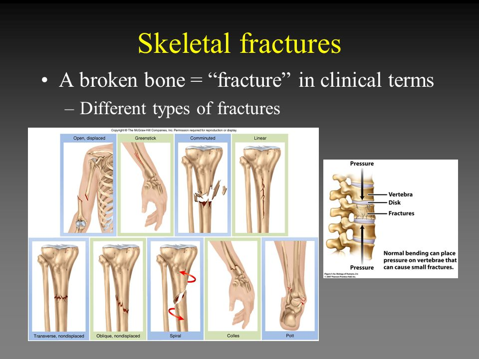 Skeletal fractures A broken bone = fracture in clinical terms –Different types of fractures