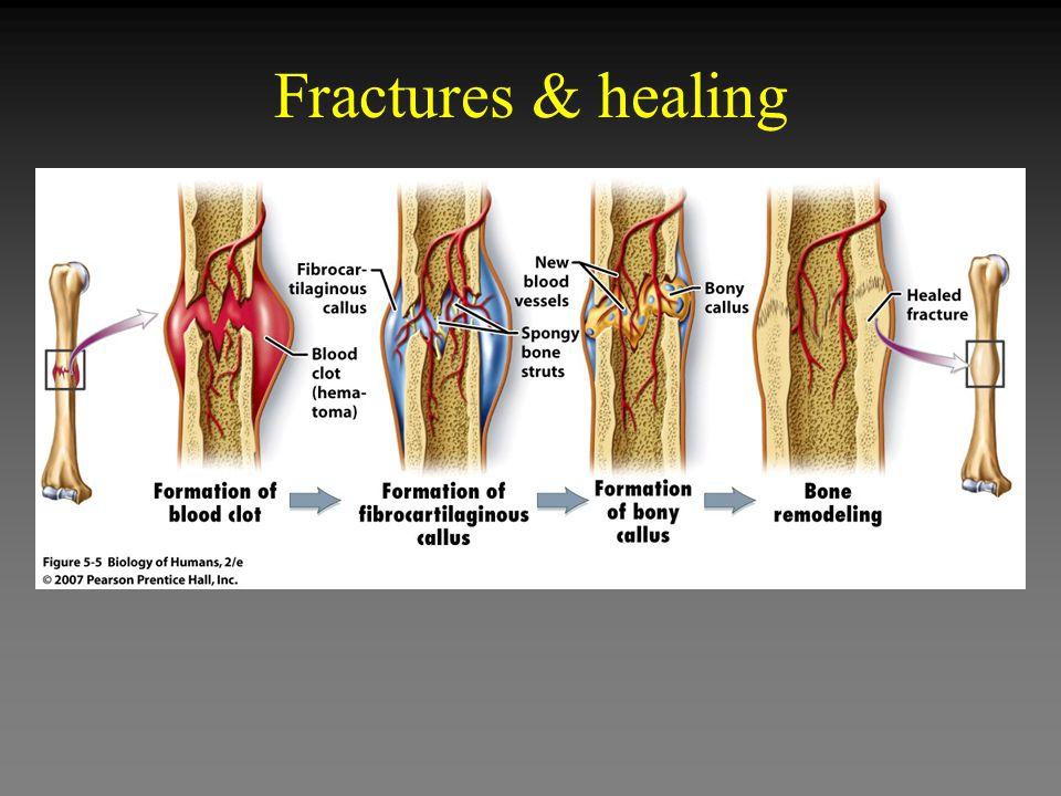 Fractures & healing