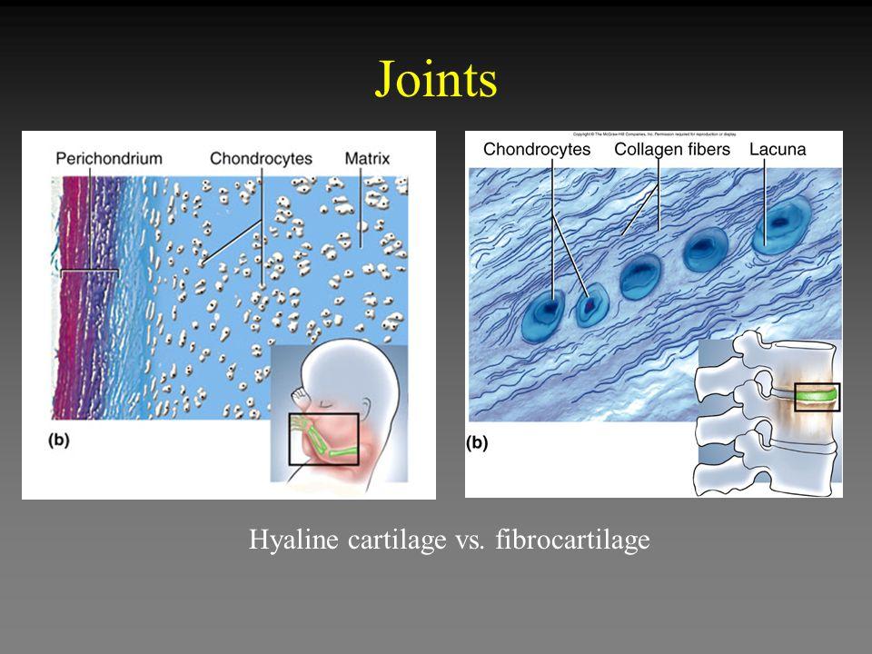 Joints Hyaline cartilage vs. fibrocartilage