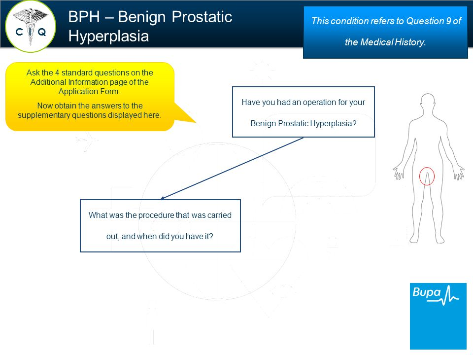 BPH – Benign Prostatic Hyperplasia Have you had an operation for your Benign Prostatic Hyperplasia.