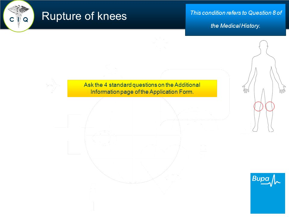 Rupture of knees C QI This condition refers to Question 8 of the Medical History.