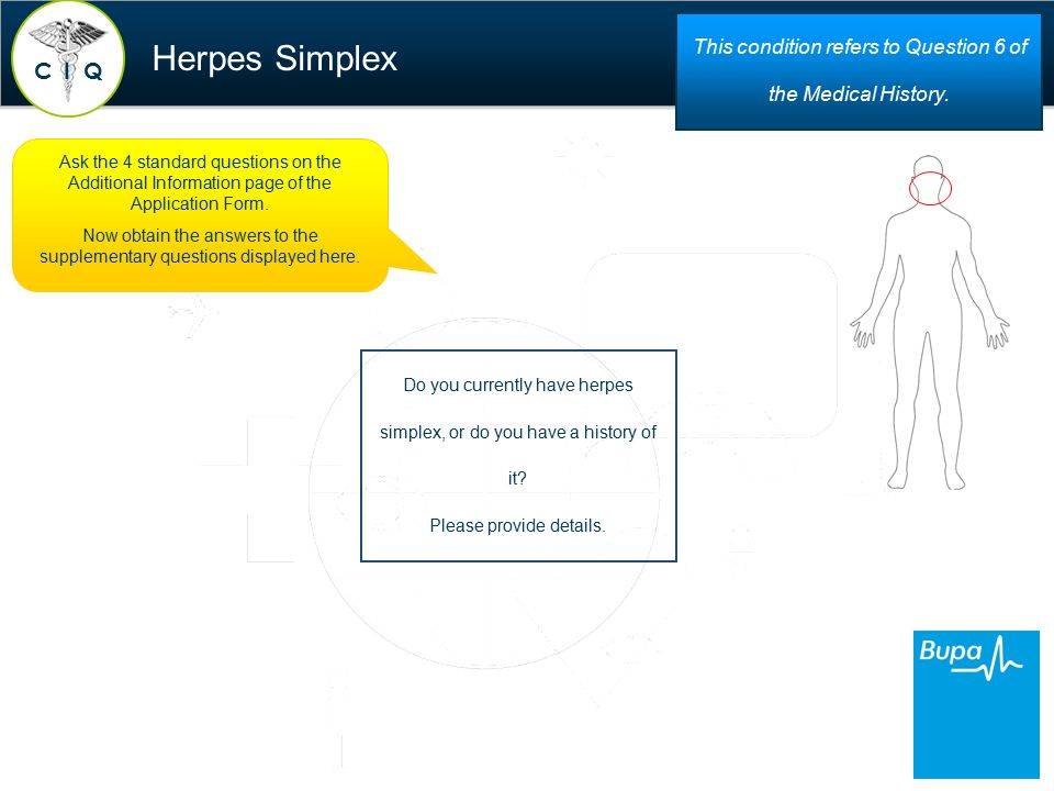 Herpes Simplex Do you currently have herpes simplex, or do you have a history of it.