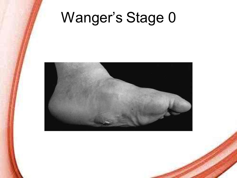 Page 34 Wanger's Stage 0