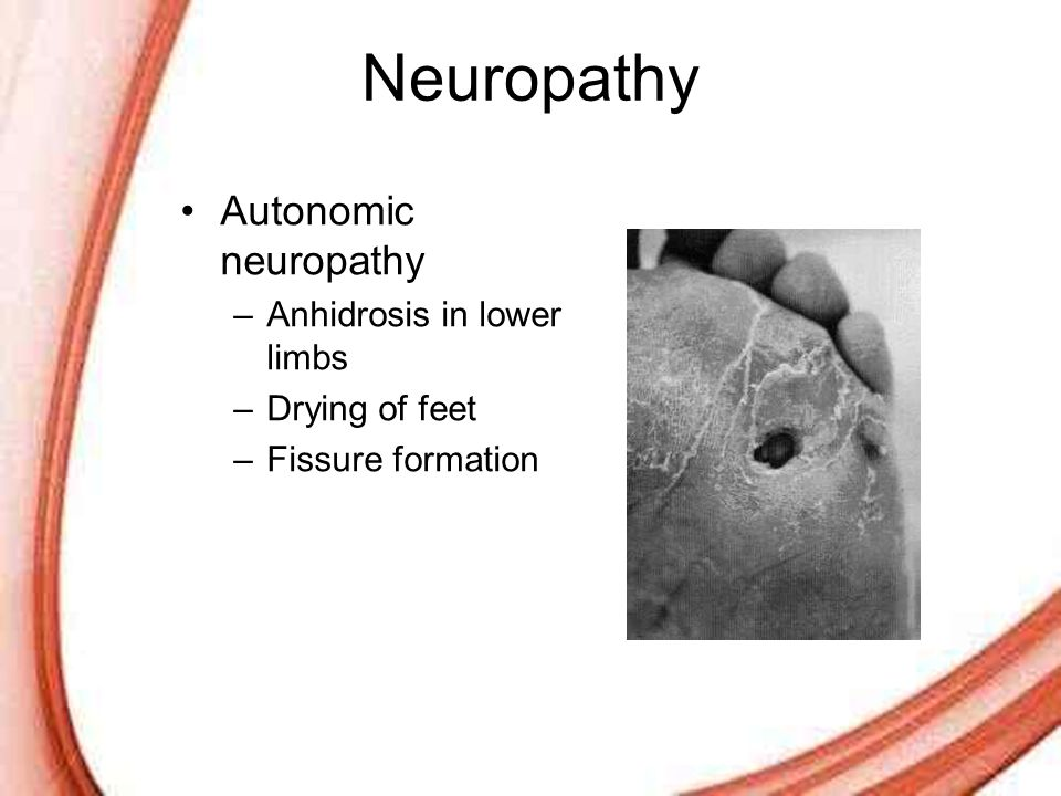 Page 8 Neuropathy Autonomic neuropathy –Anhidrosis in lower limbs –Drying of feet –Fissure formation