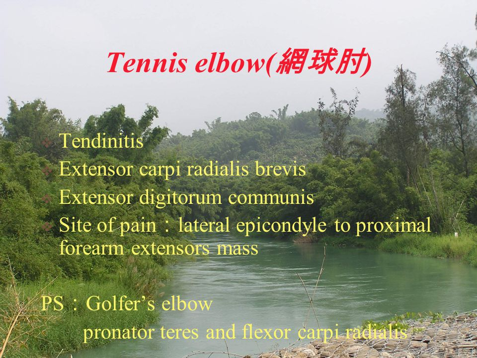 Tennis elbow( 網球肘 )  Tendinitis  Extensor carpi radialis brevis  Extensor digitorum communis  Site of pain : lateral epicondyle to proximal forear