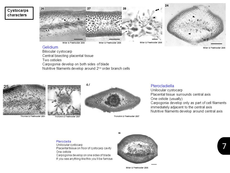 7 Cystocarps characters Gelidium Bilocular cystocarp Central bisecting placental tissue Two ostioles Carpogonia develop on both sides of blade Nutritive filaments develop around 2 nd order branch cells Pterocladiella Unilocular cystocarp Placental tissue surrounds central axis One ostiole (usually) Carpogonia develop only as part of cell filaments immediately adjacent to the central axis Nutritive filaments develop around central axis Pterocladia Unilocular cystocarp Placental tissue on floor of cystocarp cavity One ostiole Carpogonia develop on one sides of blade If you see anything like this you'll be famous Millar & Freshwater 2005 Thomas & Freshwater 2001 Tronchin & Freshwater 2007