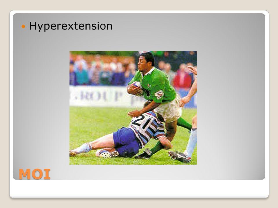 MOI Hyperextension