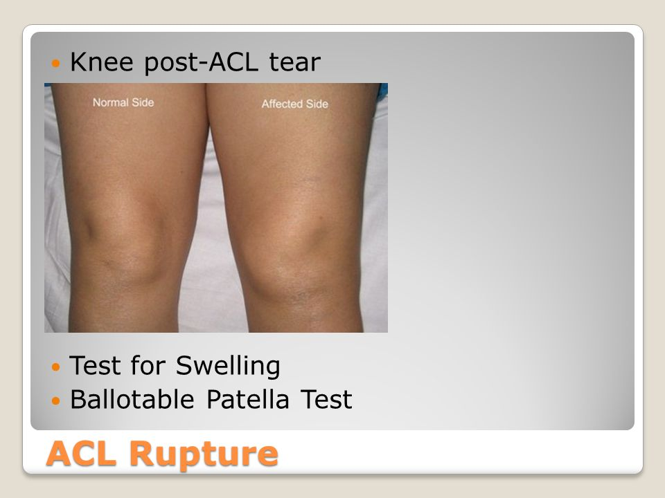 ACL Rupture Knee post-ACL tear Test for Swelling Ballotable Patella Test
