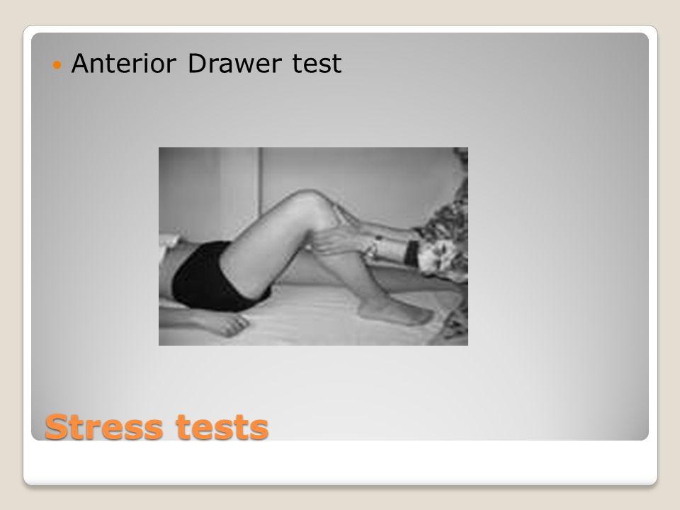 Stress tests Anterior Drawer test