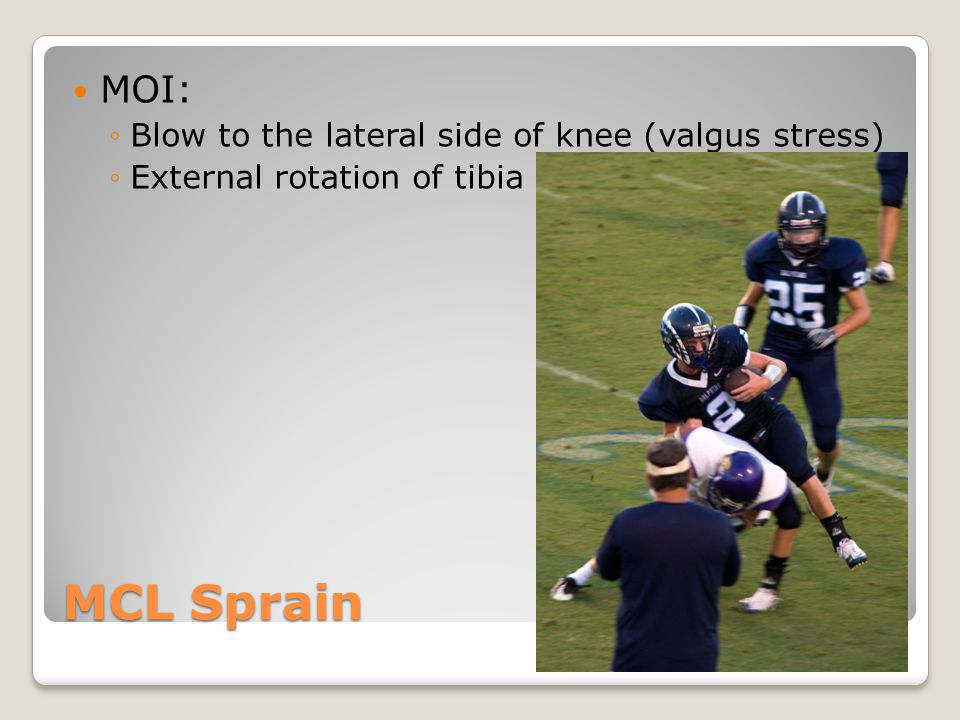 MCL Sprain MOI: ◦Blow to the lateral side of knee (valgus stress) ◦External rotation of tibia