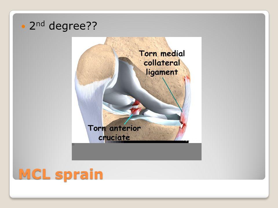 MCL sprain 2 nd degree??