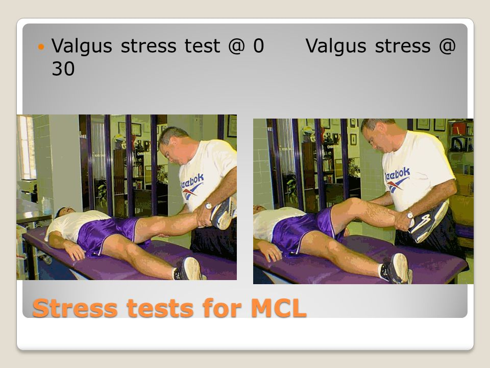 Stress tests for MCL Valgus stress test @ 0 Valgus stress @ 30