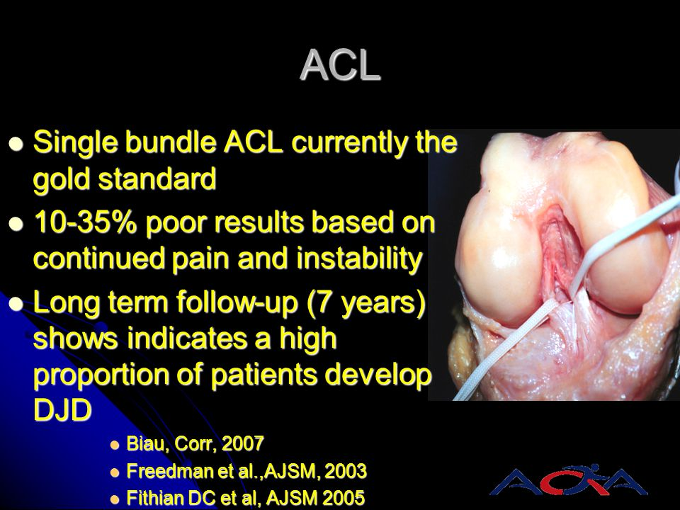 ACL Single bundle ACL currently the gold standard Single bundle ACL currently the gold standard 10-35% poor results based on continued pain and instab