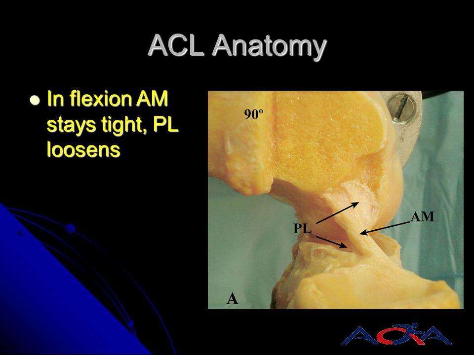 ACL Anatomy In flexion AM stays tight, PL loosens In flexion AM stays tight, PL loosens
