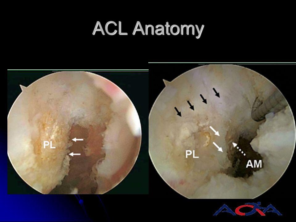 ACL Anatomy