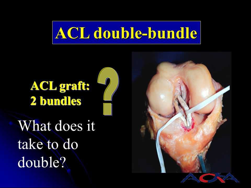 ACL double-bundle ACL graft: 2 bundles What does it take to do double?