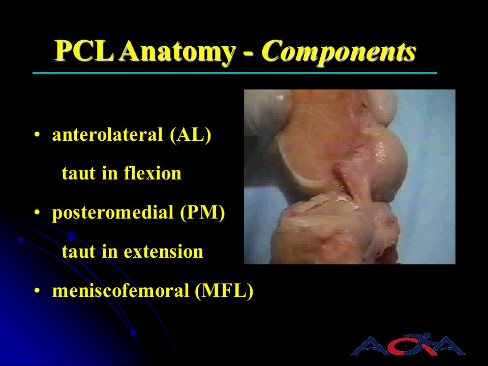 PCL Anatomy - Components anterolateral (AL) taut in flexion posteromedial (PM) taut in extension meniscofemoral (MFL)
