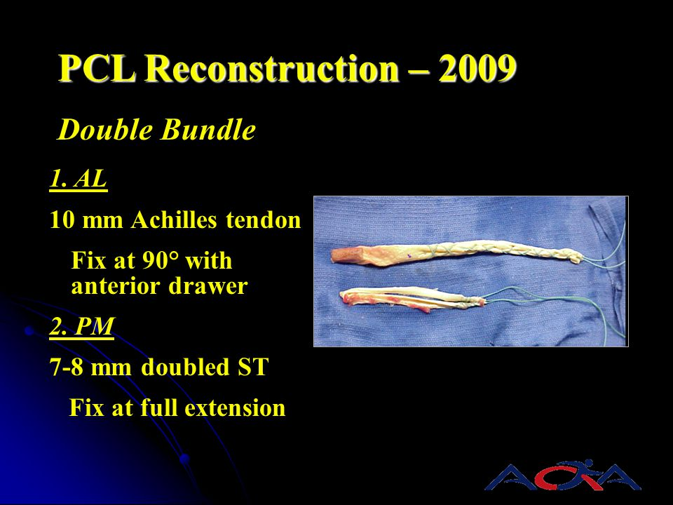 PCL Reconstruction – 2009 Double Bundle 1. AL 10 mm Achilles tendon Fix at 90° with anterior drawer 2. PM 7-8 mm doubled ST Fix at full extension