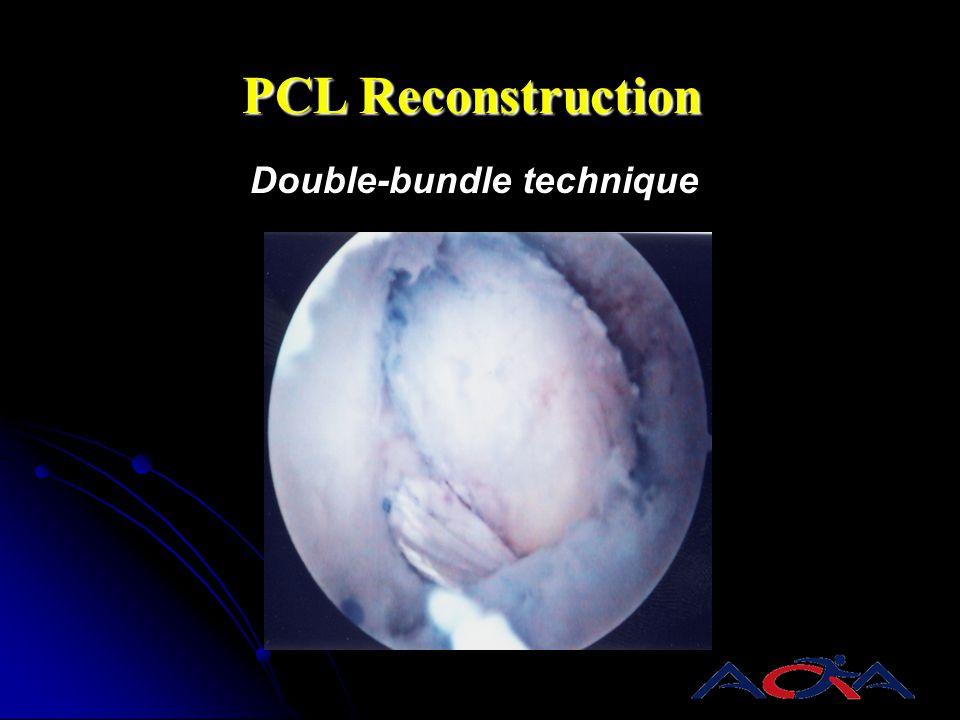 Double-bundle technique PCL Reconstruction AL PM