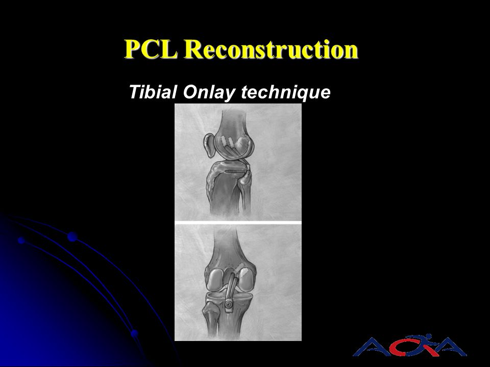Tibial Onlay technique PCL Reconstruction