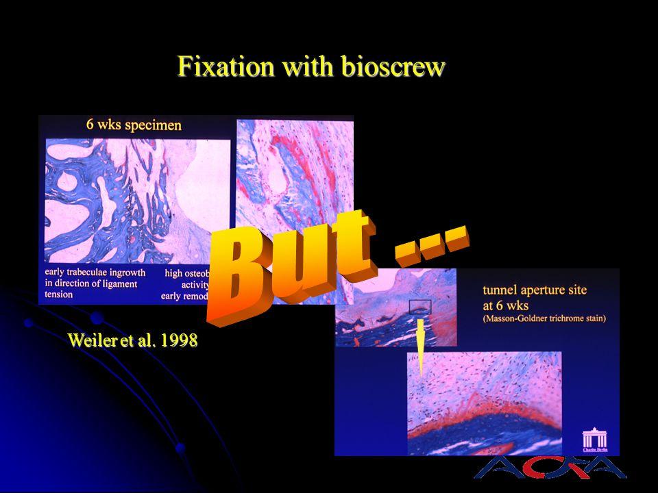 Weiler et al. 1998 Fixation with bioscrew