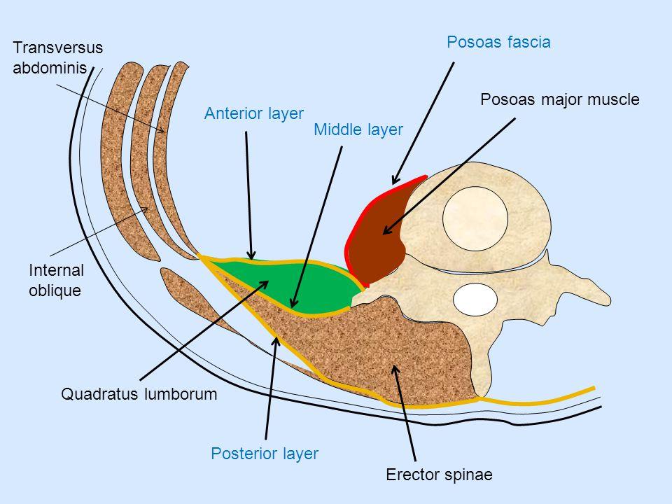 Anterior layer Middle layer Posterior layer Posoas major muscle Quadratus lumborum Erector spinae Posoas fascia Internal oblique Transversus abdominis