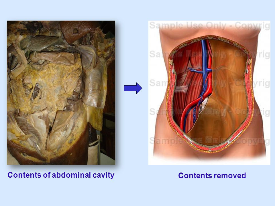 Contents of abdominal cavity Contents removed
