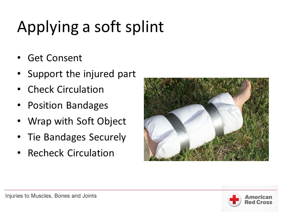 Applying a soft splint Get Consent Support the injured part Check Circulation Position Bandages Wrap with Soft Object Tie Bandages Securely Recheck Ci