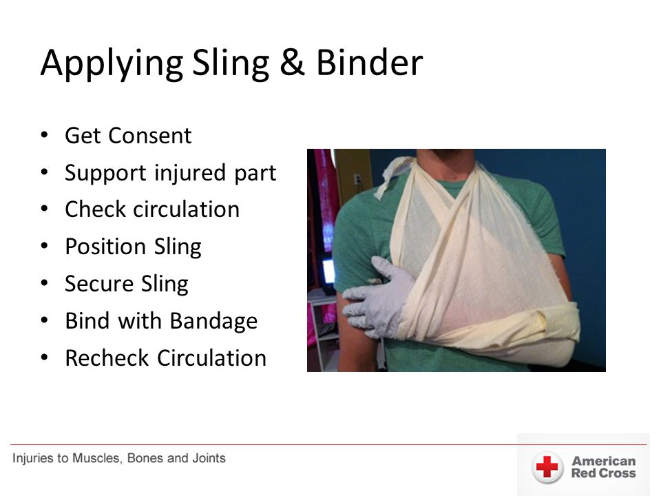 Applying Sling & Binder Get Consent Support injured part Check circulation Position Sling Secure Sling Bind with Bandage Recheck Circulation