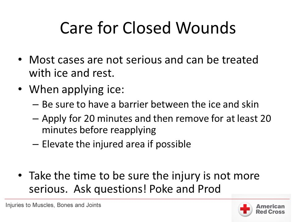 Care for Closed Wounds Most cases are not serious and can be treated with ice and rest. When applying ice: – Be sure to have a barrier between the ice