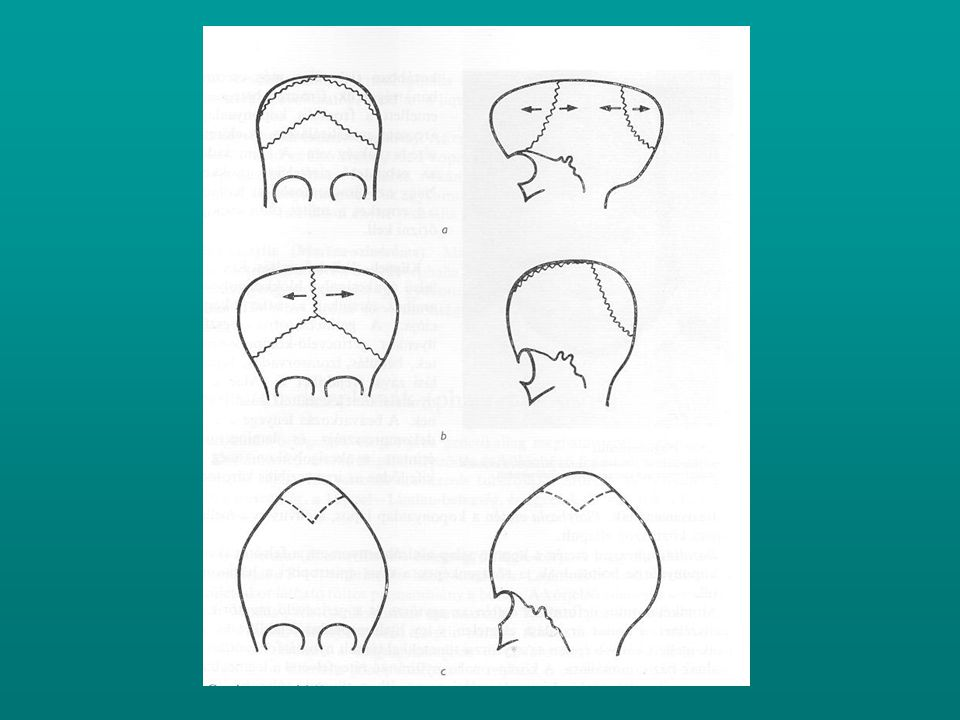 Asymmetry of face and head torticollis ?