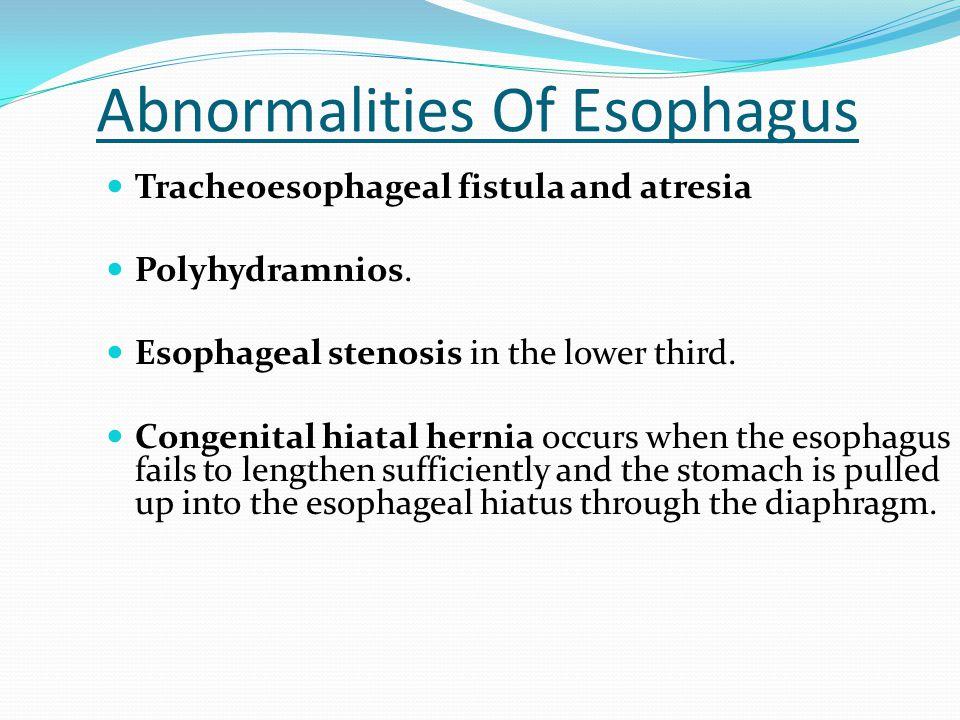 Abnormalities Of Esophagus Tracheoesophageal fistula and atresia Polyhydramnios. Esophageal stenosis in the lower third. Congenital hiatal hernia occu
