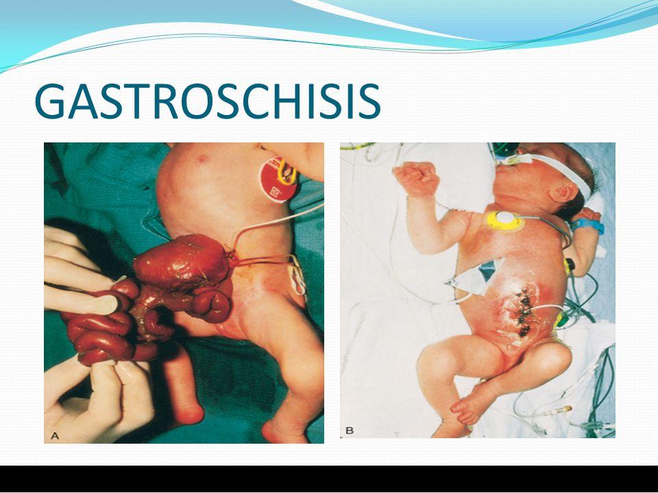 GASTROSCHISIS