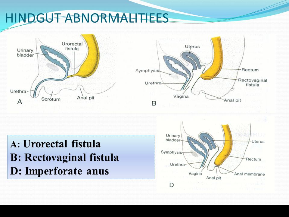 HINDGUT ABNORMALITIEES A: Urorectal fistula B: Rectovaginal fistula D: Imperforate anus