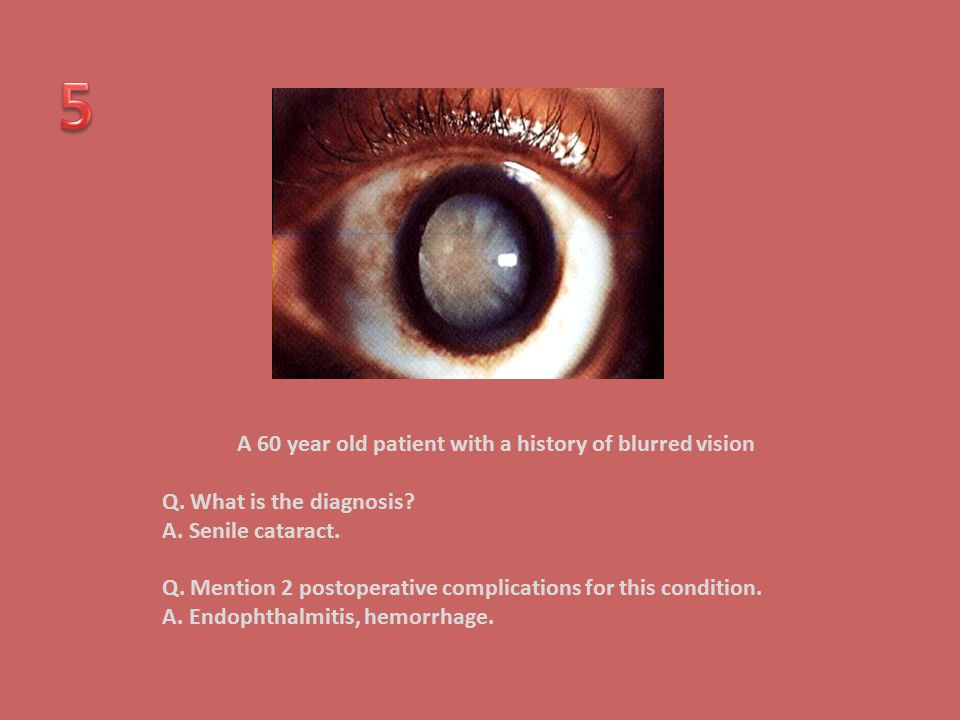 A 60 year old patient with a history of blurred vision Q. What is the diagnosis? A. Senile cataract. Q. Mention 2 postoperative complications for this