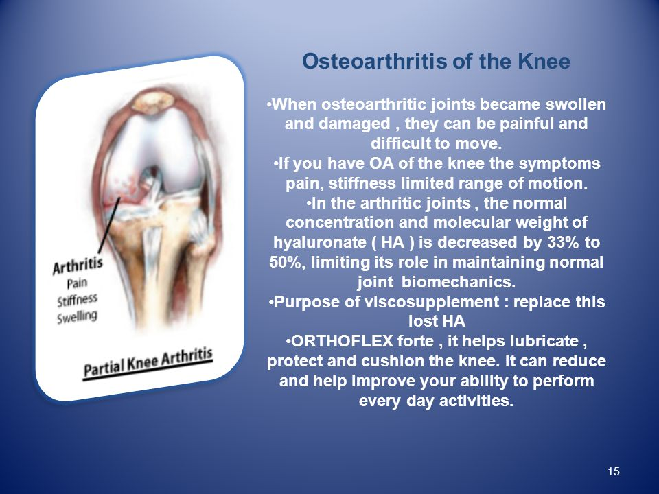 15 Osteoarthritis of the Knee When osteoarthritic joints became swollen and damaged, they can be painful and difficult to move.