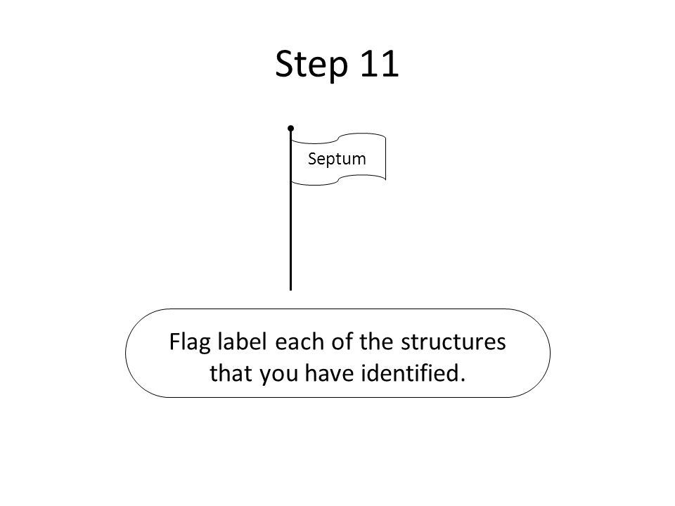 Step 11 Septum Flag label each of the structures that you have identified.