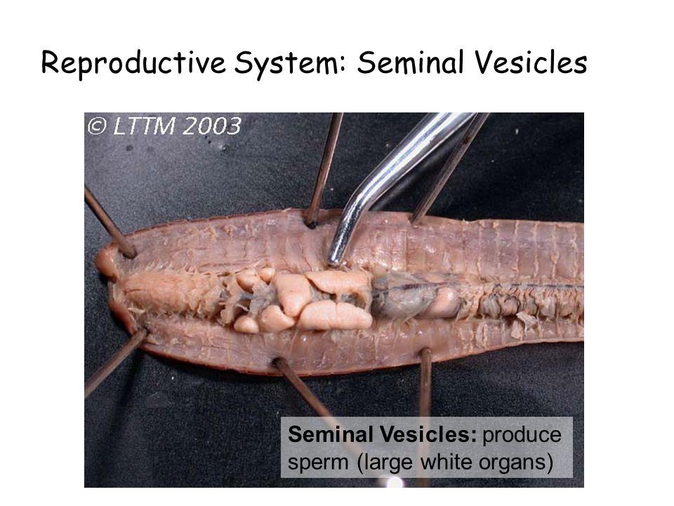 Reproductive System: Seminal Vesicles Seminal Vesicles: produce sperm (large white organs)