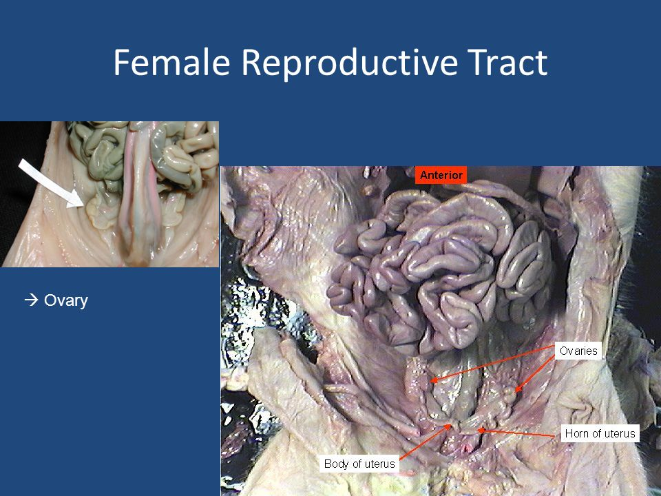 Female Reproductive Tract  Ovary