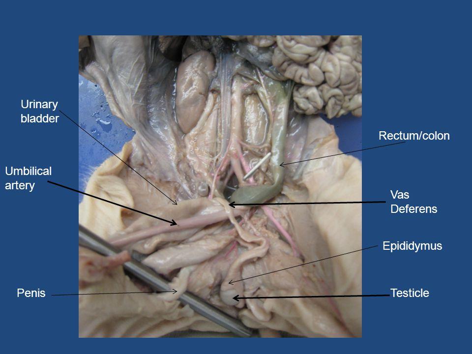 Penis Vas Deferens Testicle Epididymus Urinary bladder Umbilical artery Rectum/colon