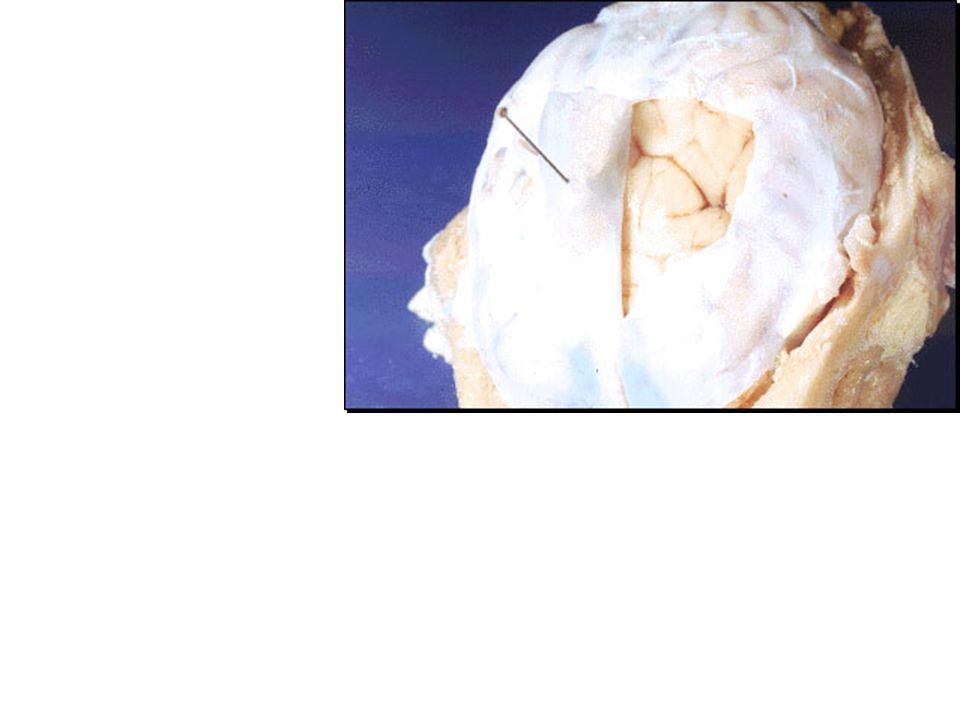 Cranial nerves Olfactory bulb nerve I.Optic nerve II.
