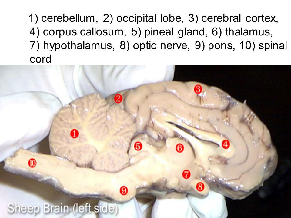 1) cerebellum, 2) occipital lobe, 3) cerebral cortex, 4) corpus callosum, 5) pineal gland, 6) thalamus, 7) hypothalamus, 8) optic nerve, 9) pons, 10)