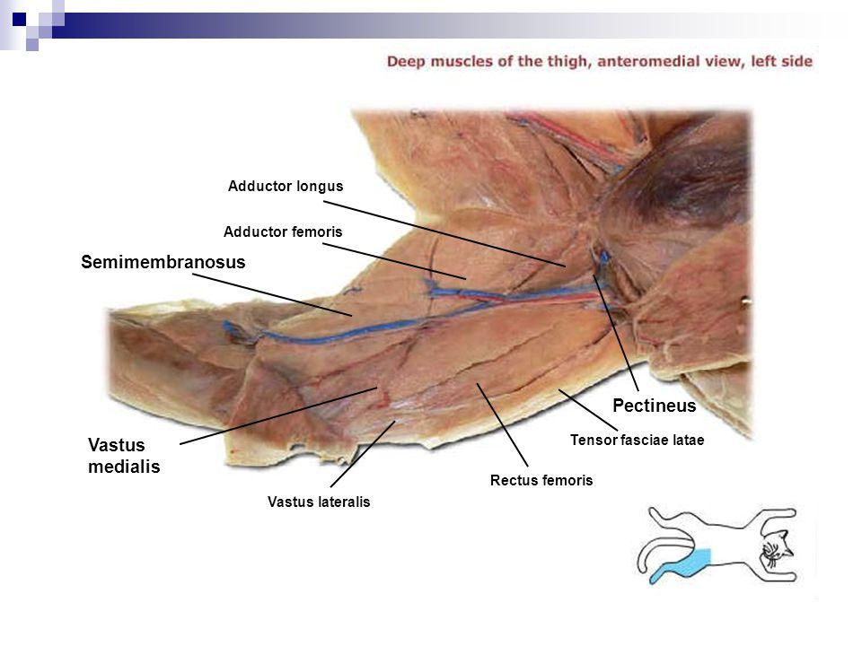 Adductor femoris Tensor fasciae latae Pectineus Semimembranosus Vastus medialis Vastus lateralis Rectus femoris Adductor longus