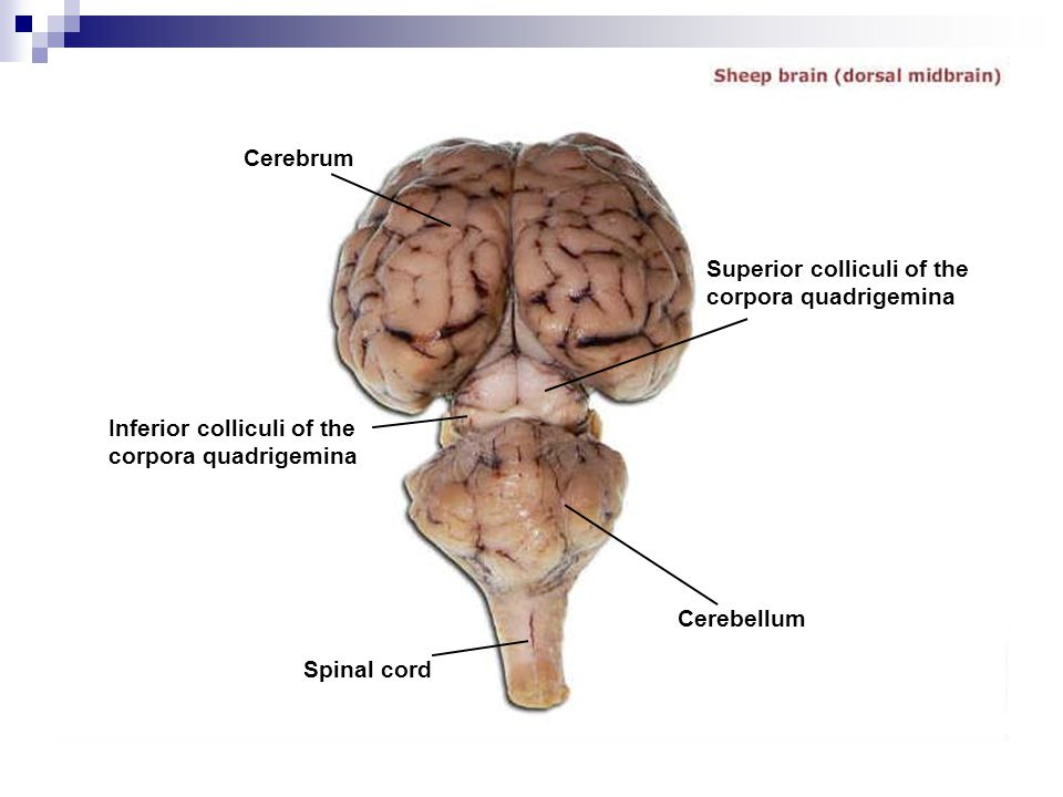 Cerebrum Inferior colliculi of the corpora quadrigemina Superior colliculi of the corpora quadrigemina Spinal cord Cerebellum