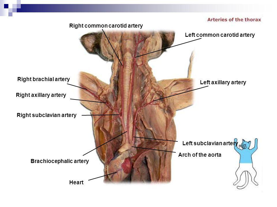 Right common carotid artery Right brachial artery Right axillary artery Right subclavian artery Brachiocephalic artery Heart Arch of the aorta Left su