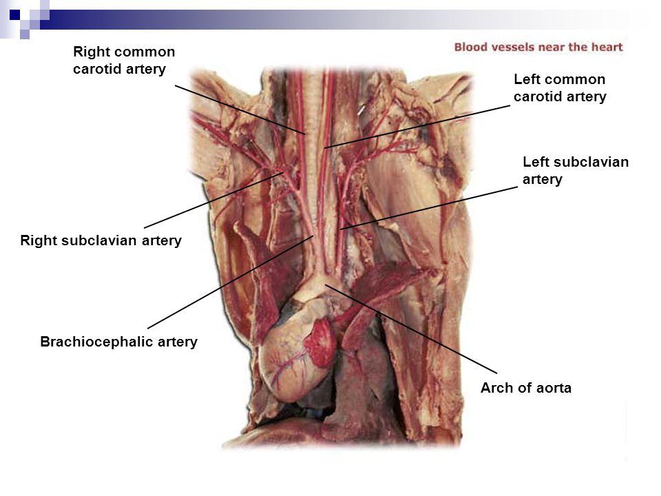Right common carotid artery Right subclavian artery Brachiocephalic artery Arch of aorta Left subclavian artery Left common carotid artery