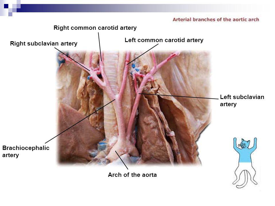 Right subclavian artery Brachiocephalic artery Arch of the aorta Left subclavian artery Left common carotid artery Right common carotid artery
