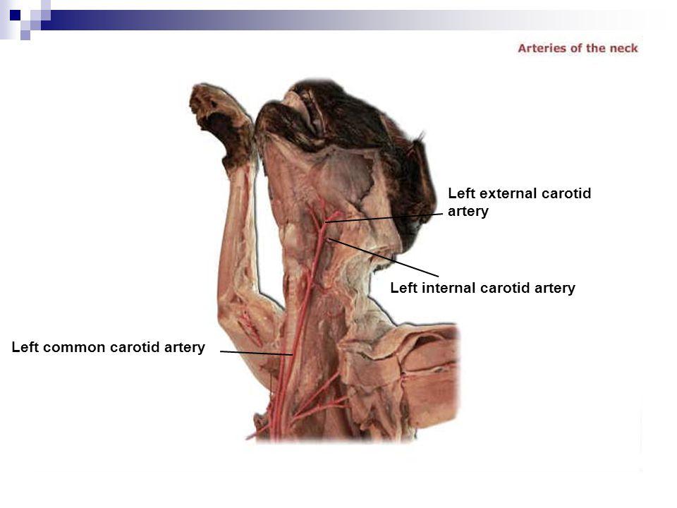 Left common carotid artery Left internal carotid artery Left external carotid artery