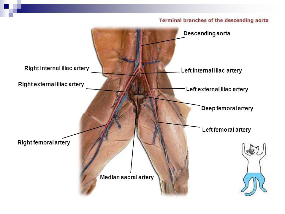 Right internal iliac artery Right external iliac artery Right femoral artery Median sacral artery Left femoral artery Deep femoral artery Left externa