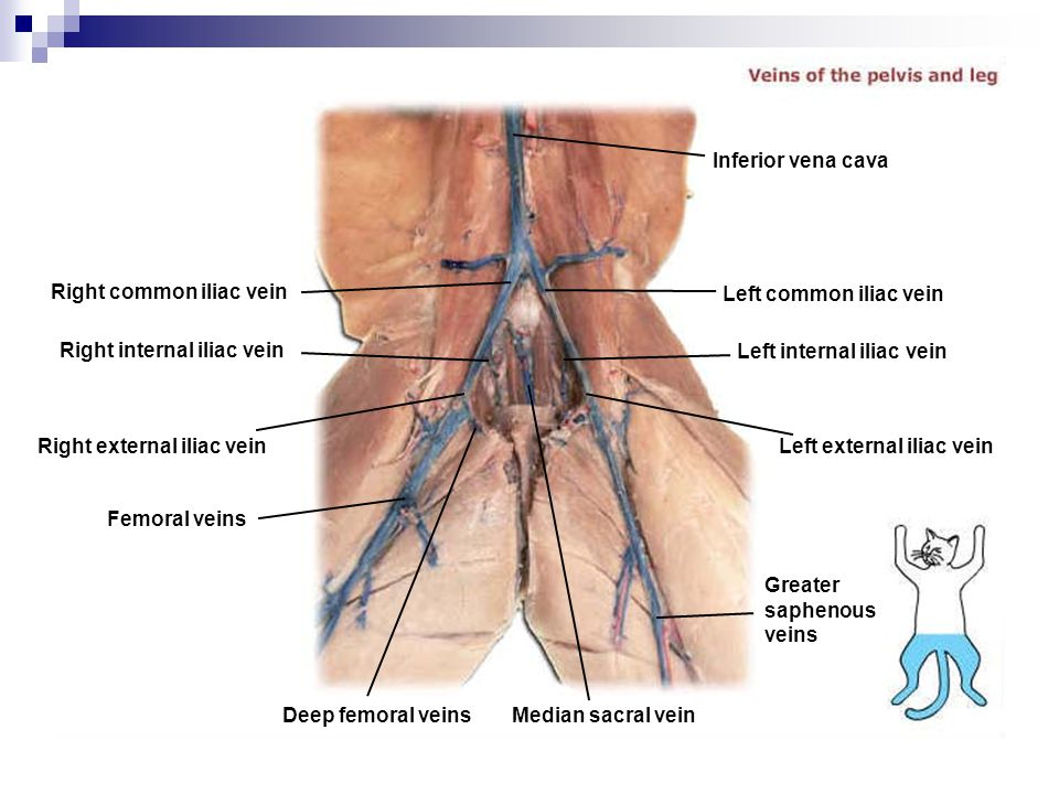 Right common iliac vein Right internal iliac vein Right external iliac vein Femoral veins Deep femoral veins Median sacral vein Greater saphenous vein